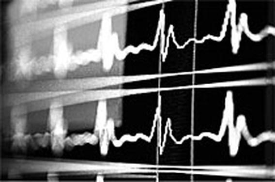 Vier Belgische werknemers op de vijf riskeren hartziekte