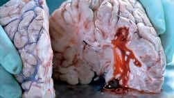 Hersenbloeding.