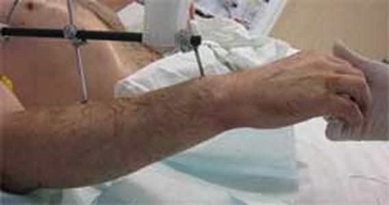 Dubbele armtransplantatie voor Duitser