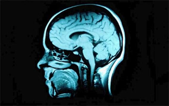 Alzheimer Cafe Day in Brussel doorbreekt taboes rond ziekte