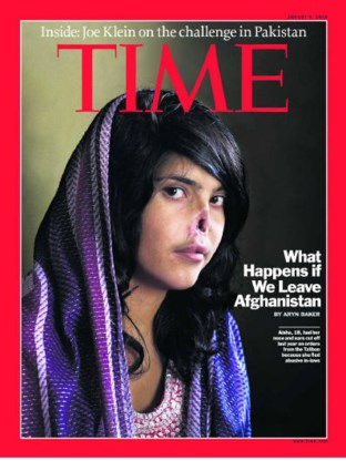Aisha (18) werd door haar echtgenoot verminkt omdat ze hem verlaten had. ap