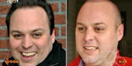 Frans Bauer kaal na haartransplantatie