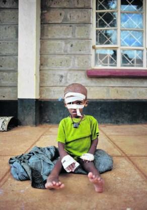 Uitgehongerde Somaliërs blijven toestromen in de zo al overbevolkte kampen over de grens met Kenia.