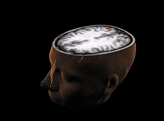 Moordenaars binnenkort op vrije voeten op basis van hersenscan?