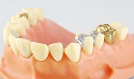 Tandvullingen niet duurder voor de patiënt