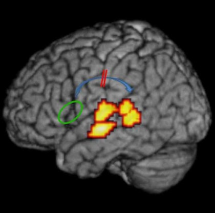 Leuvens onderzoek werpt nieuw licht op dyslexie