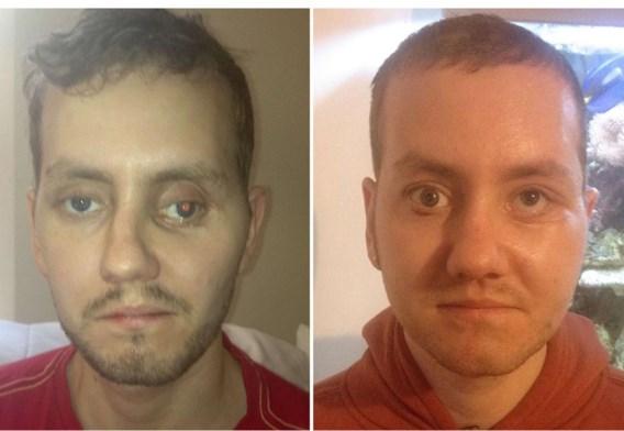 Stephen Powers, voor en na de operatie.