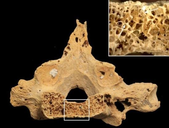 De oudste ruggenwervel met kankerschade.