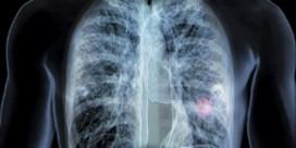 Immuuntherapie werkt beter bij longkanker