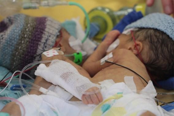 Artsen scheiden Siamese tweeling acht dagen na geboorte