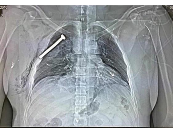 Een röntgenfoto van een patiënt die gisteren met een spijker in de borst in het ziekenhuis van Neder-Over-Heembeek werd verzorgd.