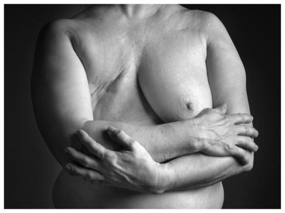 """""""Werkneemsters met borstkanker onvoldoende begeleid door werkgever"""""""