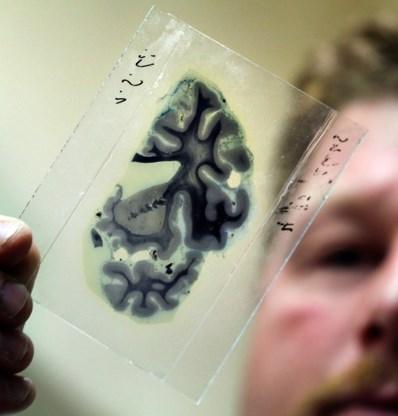 Hoop op preventief alzheimermedicijn