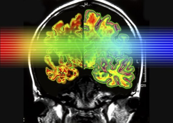 Belgen onthullen hoe alzheimer zich in hersenen verspreidt