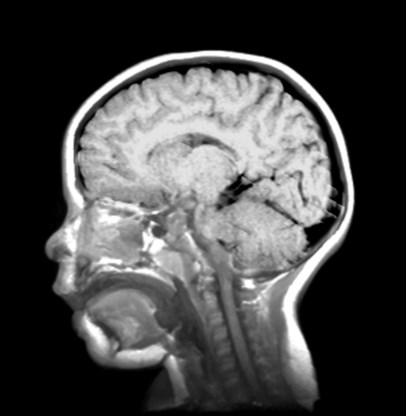 ADHD is géén verzinsel, wel een ontwikkelingsstoornis