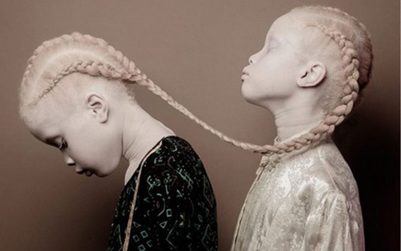 Bijzondere tweelingzusjes fascineren modewereld