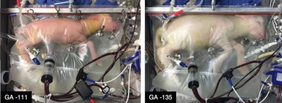 Wetenschappers ontwikkelen kunstmatige baarmoeder
