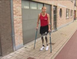Hannelore krijgt beenprothesen
