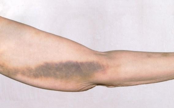 Genezing bloedingsziekte binnen handbereik
