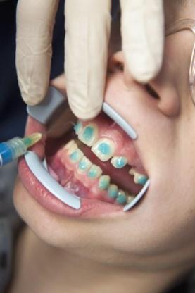 Tandarts krijgt hulp van mondhygiënist