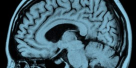 Hersenscan kan alzheimer vroegtijdig vaststellen