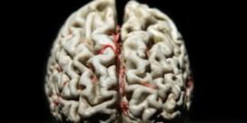'Nut pillen tegen alzheimer zeer twijfelachtig'