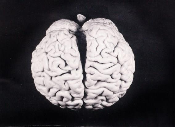 Wat is een herseninfarct?