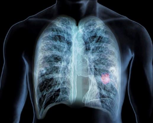 Preventieve CT-scan kan longkanker sneller ontdekken