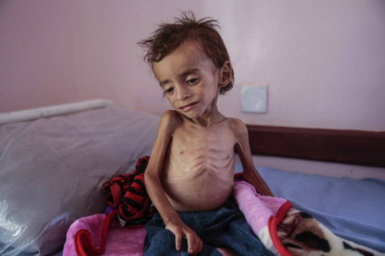 85.000 kinderen gestorven door honger in Jemen
