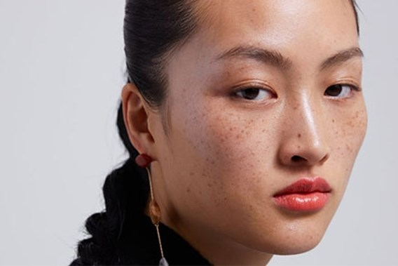 Chinees model met sproeten verhit de gemoederen