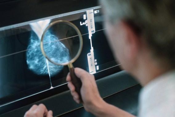 Proffen stellen screening borstkanker in vraag: 'Niet minder kans om kankerpatiënt te worden, integendeel'
