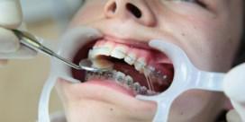 Bezoek aan de tandarts doet (financieel) meer pijn