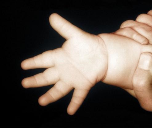 Het aantal baby's geboren met Down slinkt