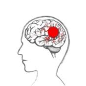 Als de pijnstiller tot nóg meer migraine leidt