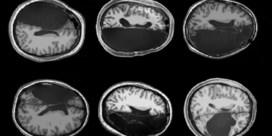 Ook met één hersenhelft valt goed te leven