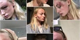 Model deelt intieme foto's van partnergeweld: 'Aan alle vrouwen: aarzel niet, dien klacht in'