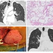 UZ Leuven transplanteert longen van ex-covid-19-patiënte