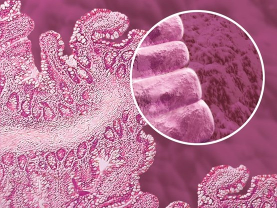 Onderzoekers KU Leuven ontdekken oorzaak prikkelbaredarmsyndroom