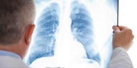 Nieuwe longen redden kritieke covidpatiënt