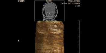 'Brusselse' mummie onthult Egyptische tandchirurgie